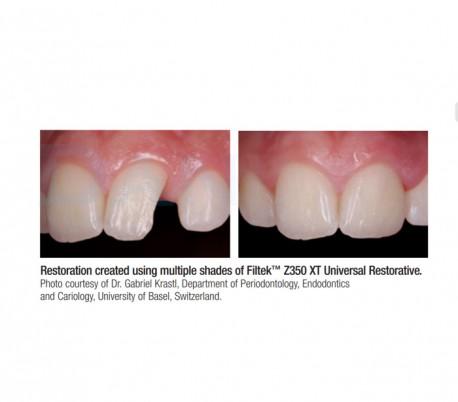 3M - Filtek Z350 XT Dentin Composite