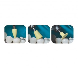 Microdont - Blaze Composite Polishing - Cup