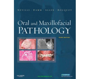 Oral & Maxillofacial Pathology- Neville – 3rd Edition