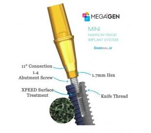 Megagen Implant