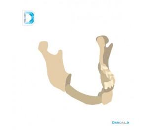 Mandible modeling by 3D printer