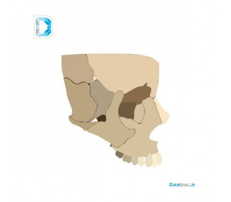 Maxillary modeling by 3D printer