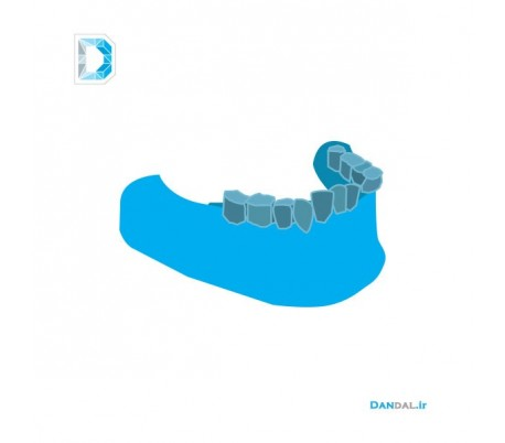 Mandible modeling by 3D printer