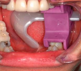 دهان بازکن و زبان گیر UltraDent - PropGard