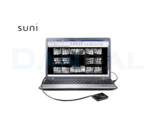 Suni - SuniRay2 Digital X-Ray Sensor