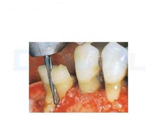 فرز کارباید لیندمان جراحی - DiaTessin