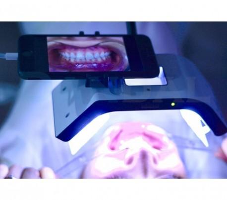 Smile Line - Smile Lite MDP