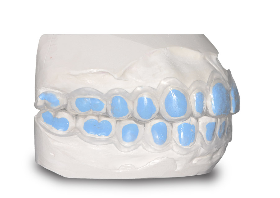 Master-Dent Blue Block-Out Material