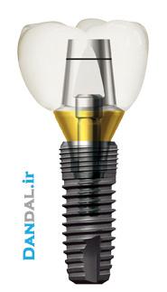 Dentium - Implantium