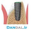 Dentium - NR Line