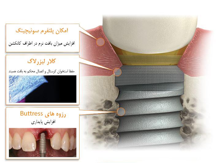 biohorizons-tapered-internal-plus