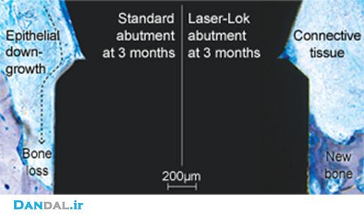 laserlock-compare11.jpg