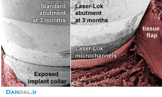 laserlock-compare22.jpg