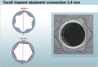 bredent sky implant