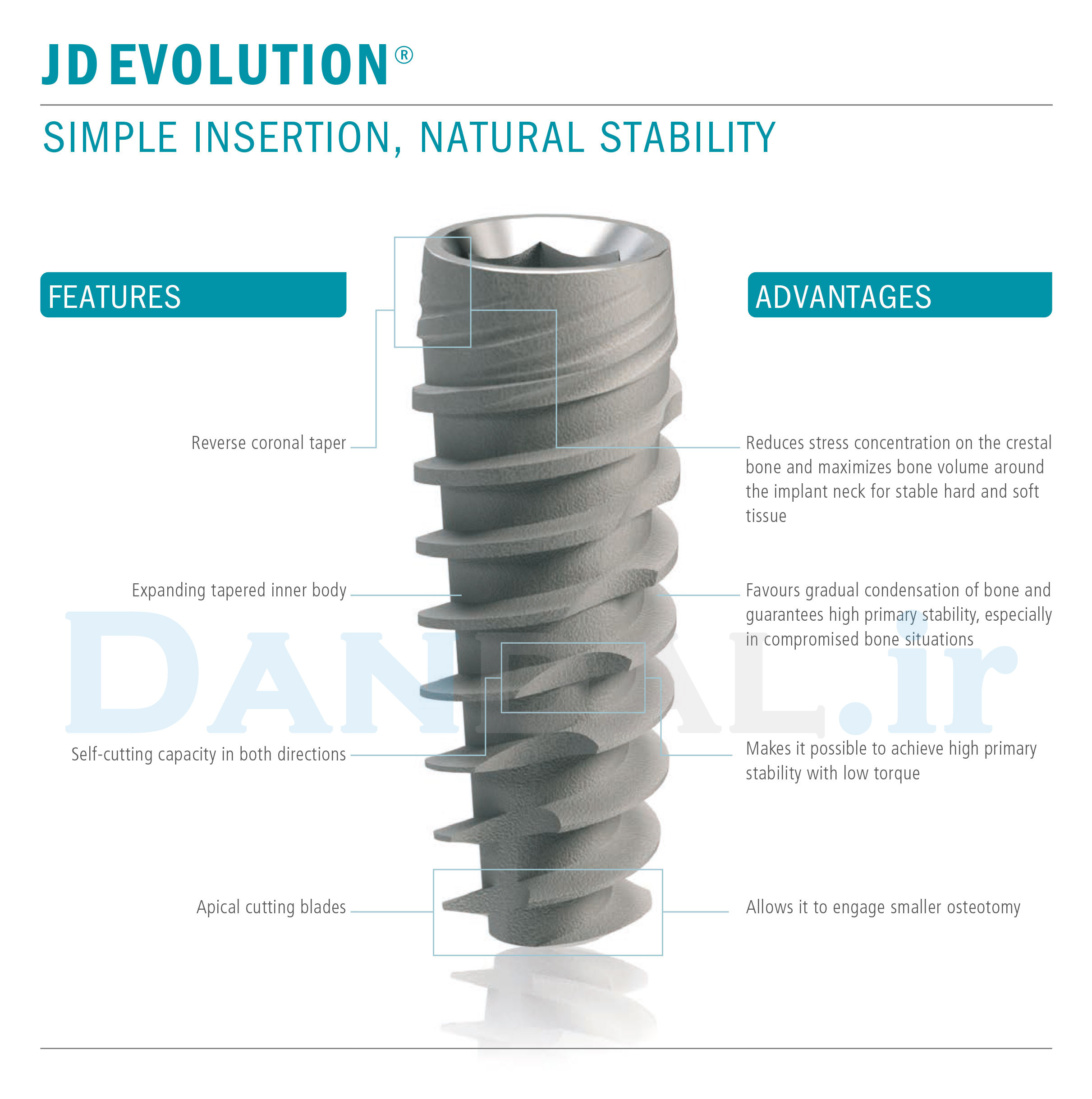jdental care implant