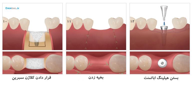 rs dentium