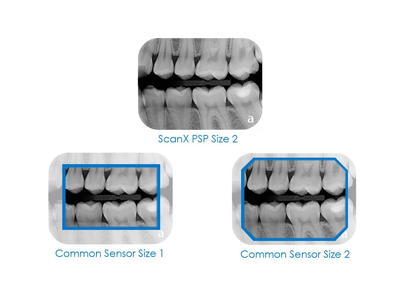 phosphor plate & rvg